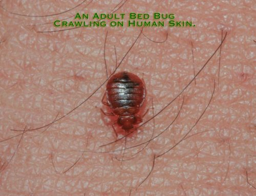 Severe Reaction to Bed Bug Bites